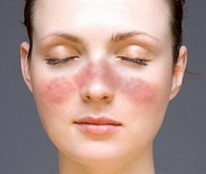 Аллергия у человека.